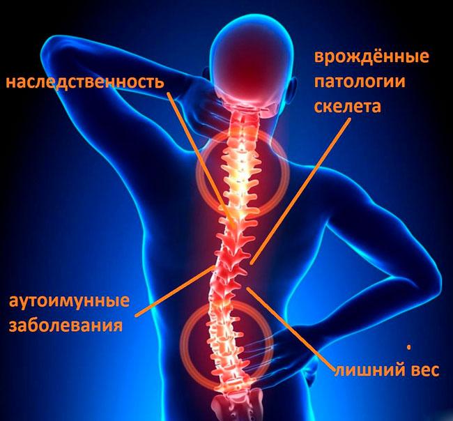 Защемление нерва может возникнуть при сдавливании нервных корешков, которые отходят от спинного мозга, соседними позвонками, межпозвонковыми дисками, мышцами и различными патологическими образованиями