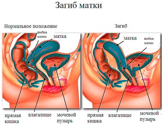 Нормальное анатомическое положение матки специально предусмотрено природой, чтобы на пути сперматозоидов не было никаких препятствий, поэтому из-за загиба многие женщины не могут забеременеть