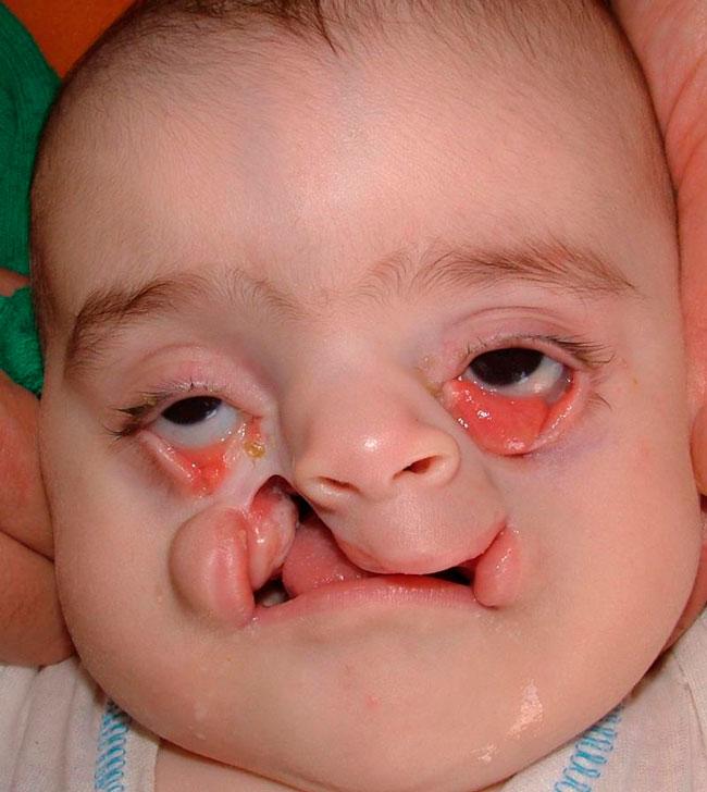 Характерной формой данной патологии является деформация верхней, реже нижней губы на лице ребенка: она расщеплена и состоит из двух или трех частей