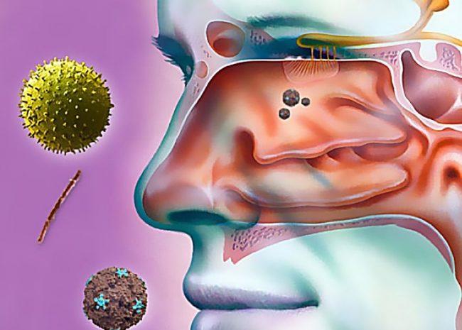 Утренняя заложенность носа без соплей - достаточно распространенное явление, в течение всего дня нос дышит, но к утру его закладывает. Когда такая аномалия становится хронической, необходимо обратиться к врачу, т.к. возможны осложнения, в частности возникновение гайморита