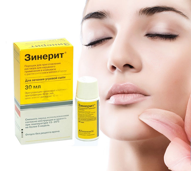 Одно из лучших средств в борьбе за красивую кожу — Зинерит, который относится к антибактериальным препаратам и применяется для лечения акне и угревой сыпи