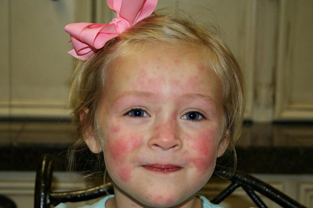 легкий дерматит и отек глаз при лямблиозе ультрафиолетовые лампы для