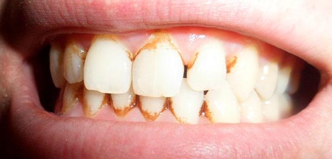 Зубной камень – это известковые отложения на эмали, которые могут появиться даже у тех, кто регулярно ухаживает за ротовой полостью