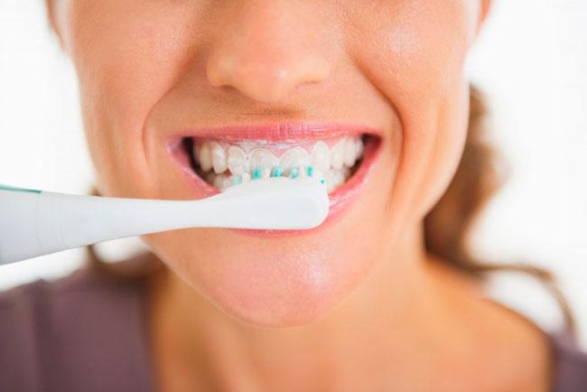 Профессиональные зубные пасты и гели в своем составе содержат растительные ферменты бромелаин, папаин, полидон, которые способны разрыхлить зубной налет