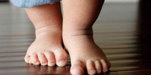 Чтобы вовремя заподозрить развитие болезни, следует обращать пристальное внимание на походку малышу и малейшие отклонения в ней или неудобства, которые может испытывать ребенок