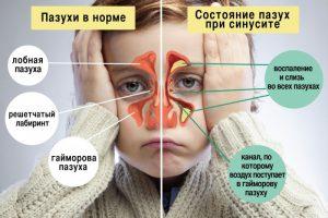 На этой картинке наглядно показано главные симптомы гайморита, ознакомьтесь, пожалуйста, с ними