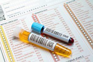 Диагностические процедуры наиболее точно отображают изменения уровня гематокрита