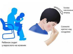 В экстренных ситуациях, пожалуйста, следуйте этой инструкции, чтобы остановить кровь
