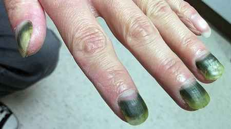 Ногти, пораженные синегнойной палочкой