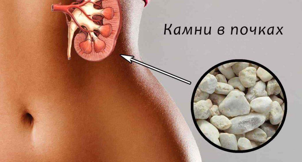 Для лечения камней в почках, следует проконсультироваться с опытным урологом, чтобы он смог подобрать для вас оптимальную дозу препарата