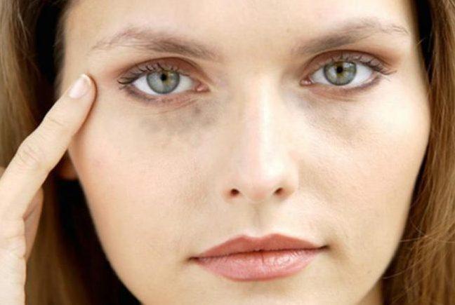 Анемия – это патологическое состояние, которое сопровождается снижением концентрации гемоглобина в крови. При данном патологическом состоянии круги под глазами являются постоянными и не исчезают даже после полноценного отдыха