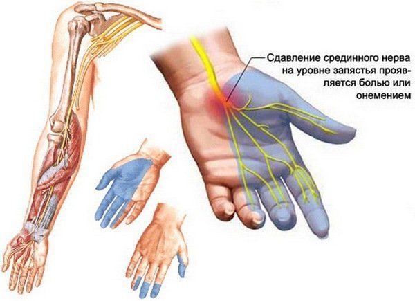 Постоянный стресс, нервное напряжение способны вызвать неприятные ощущения в правой руке