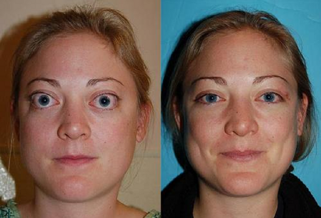 Специфическим симптомом базедовой болезни считаются модификации в зоне глаз: выраженный блеск глаз, редкое мигание, симптом Дальримпля (широко открытые глаза). При смотрении вниз с открытыми глазами появляется белая полоска над зрачком