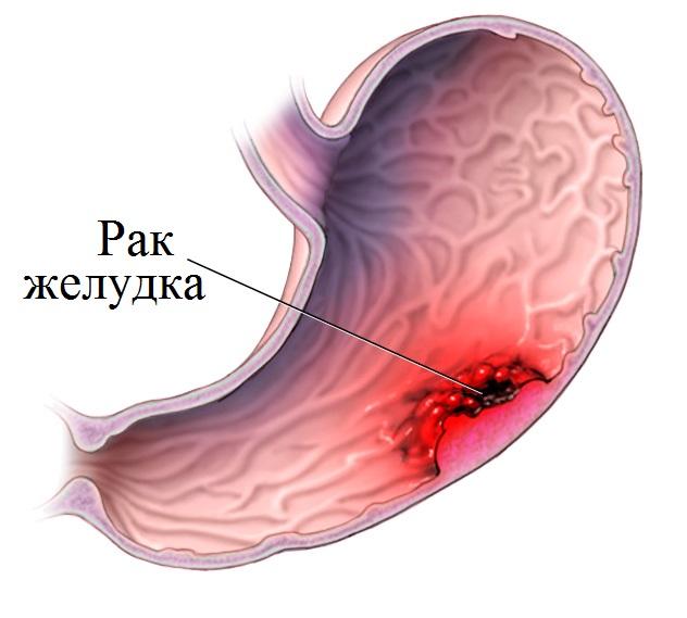 Рак желудка на ранних стадиях не имеет каких-либо высокоспецифичных признаков, его часто можно не заметить при язве желудка