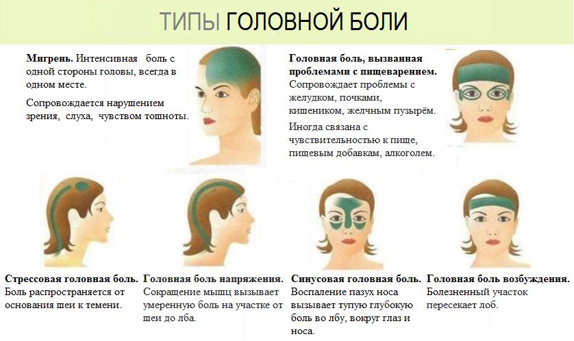 На фото показана инфографика типов головной боли и локализация - мигрень, головная боль вызванная проблемами пищеварения, стрессовая головная боль, головная боль от напряжения, синусовая головная боль и боль от возбуждения.