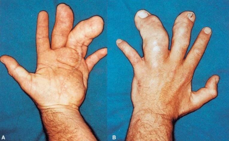 На фото огрубение пальцев рук - акромегалия рук.