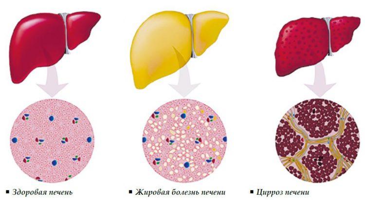 На фото показано сравнение здоровой печени человека с Жировой болезнью печени и с Циррозом печени. Вид снаружи и на молекулярном уровне, под микроскопом.