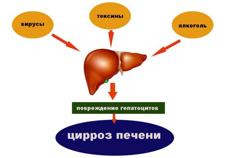На фото показано, что вирусы, токсины и алкоголь являются самыми частыми причинами цирроза.