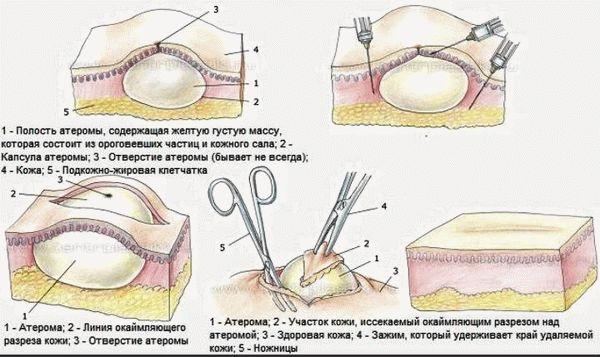 Атерома на голове: этапы удаления новообразования хирургическим путем.