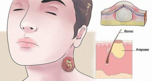 Атерома на голове: удаление новообразования волосистой части - фото пример, зарисовка художника.