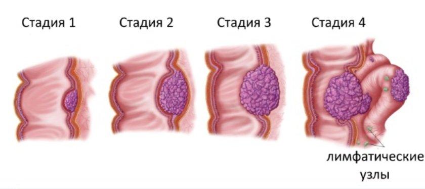 На фото стадии рака толстого кишечника - 1, 2, 3, 4 стадии онкологии.