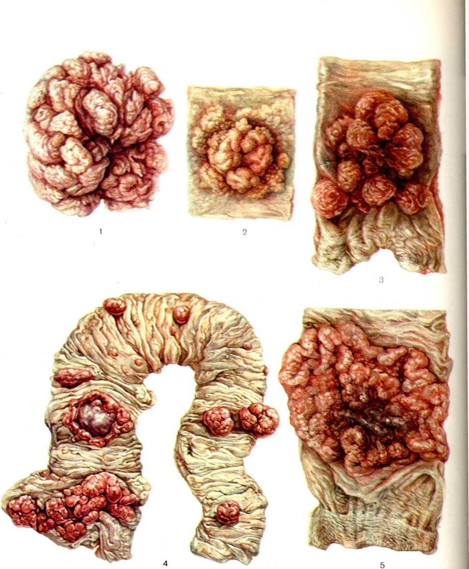 Опухоль прямой кишки и толстого кишечника, вид снаружи.