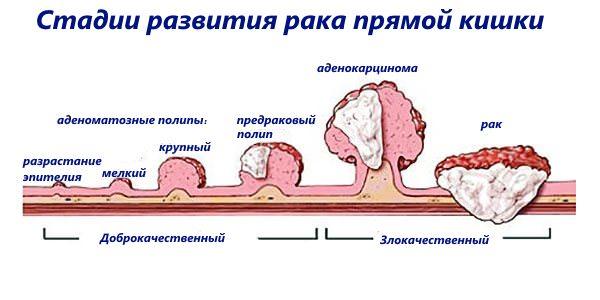 На фото показаны стадии развития рака прямой кишки, грань между доброкачественной и злокачественной опухолью. Так аденоматозные полипы развиваются в аденокарциному и рак.
