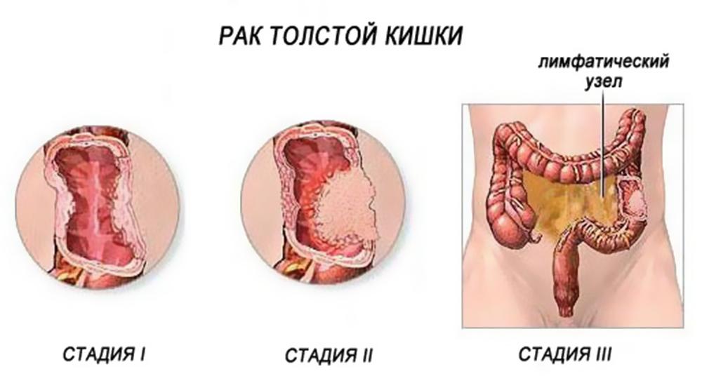 Распространение и локализация рака толстой кишки в 1, 2, 3 стадиях.