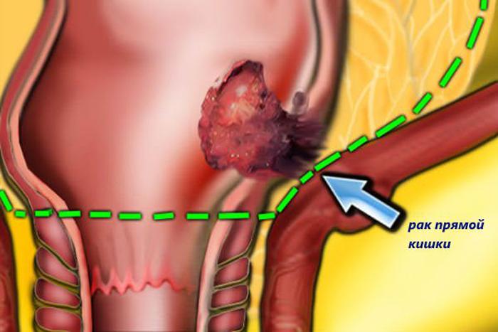 Рак кишечника: симптомы, классификация, стадии, лечение рака кишечника и профилактика