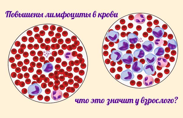 На фото пример повышенного уровня лимфоцитов в крови, при анализе в микроскоп.