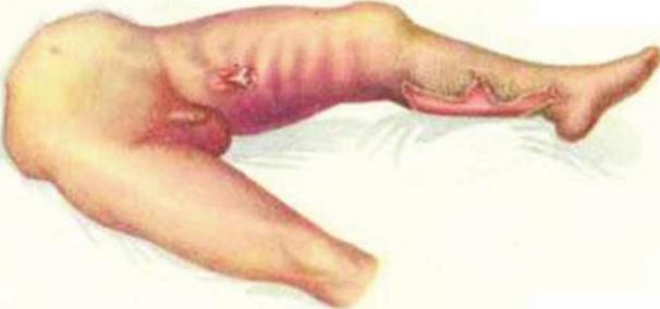 На фото газовая гангрена левой нижней конечности.