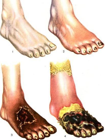 На фото показано постепенное развитие сухой гангрены на ноге, в трех стадиях, от нормального состояния.