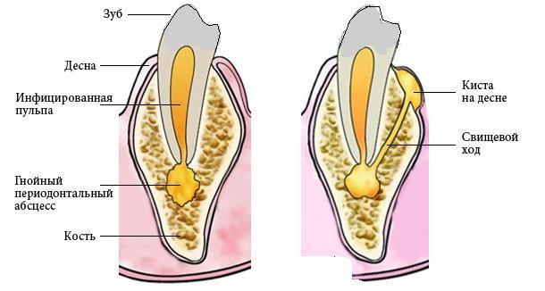 На фото показан свищ и свищевой канал. Инфицированная пульпа спровоцировала гнойный периодонтальный абсцесс, который через свищевой ход вытекает в новообразование - внешний свищ на десне.