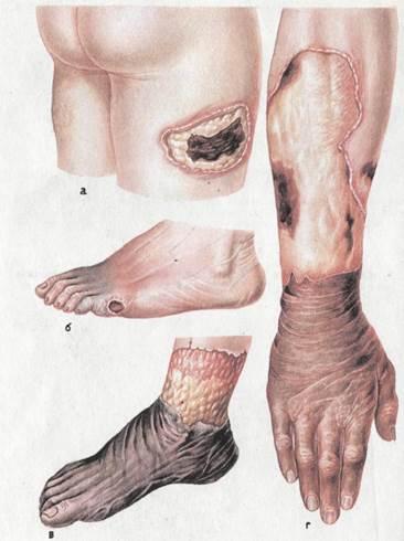 Фото пример влажной гангрены кожи бедра, руки и стопы.