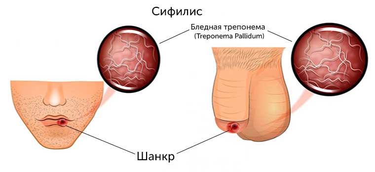 На фото показаны симптомы проявления сифилиса у мужчин на головке члена и на губах, вокруг рта и внутри рта.