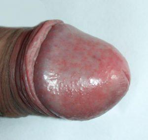 Даже маленькие красные пятна на головке у мужчин могут свидетельствовать о наличии инфекции в организме грибкового или вирусного характера
