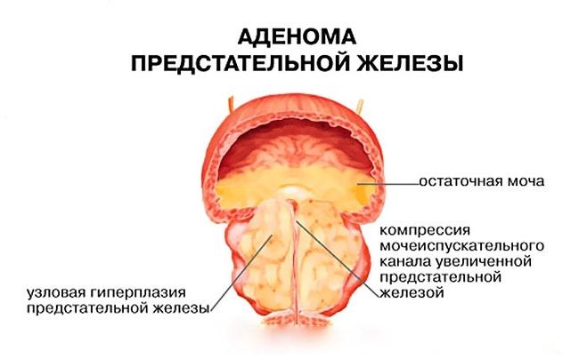 Простатилен применяется для лечения простатита и аденомы предстательной железы