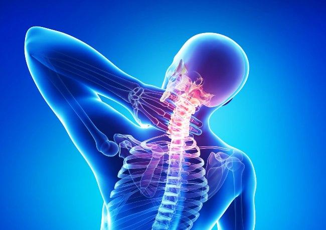 Причиной боли в шее может быть шейный спондилез