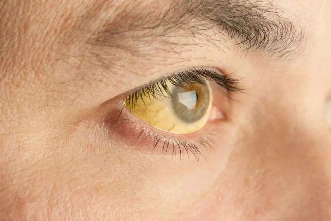 Желтушность склер - один из симптомов гепатита С