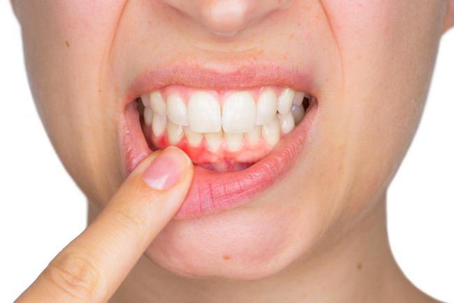 Катаральный гингивит часто возникает из-за плохой гигиены полости рта, бывает острый и хронический