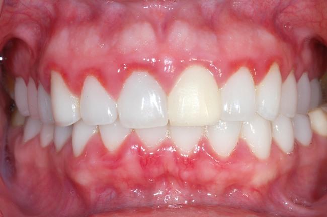 Гингивит - воспалительное заболевание десен, основными симптомами являются покраснение и кровоточивость
