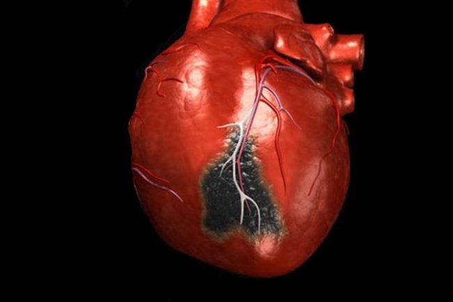 Инфаркт миокарда - самая опасная форма ишемической болезни сердца