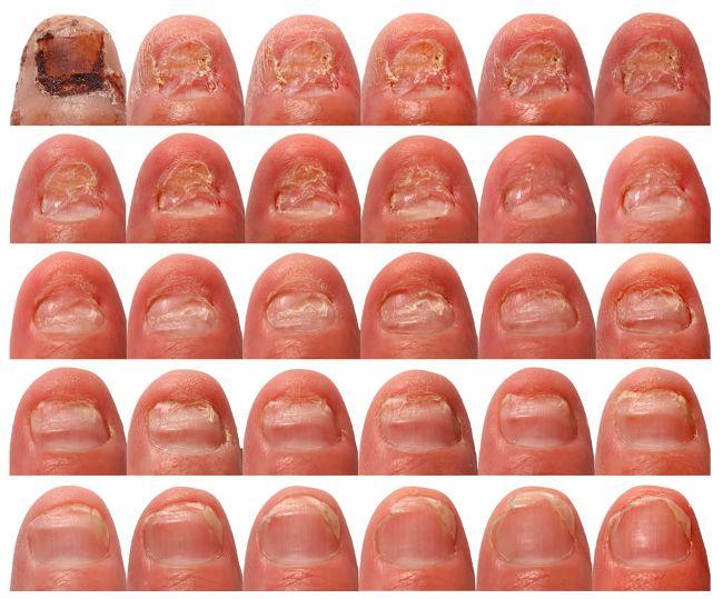 Итраконазол применяется для лечения грибка ногтей
