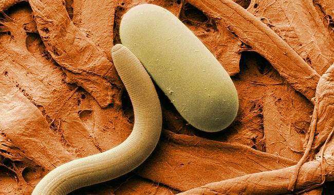 Острицы у детей - распространенное явление. Согласно статистике, 85% зараженных данным видом паразитов приходится именно на детей