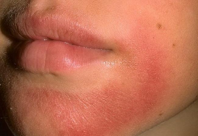Радевит применяется для лечения дерматита различной этиологии