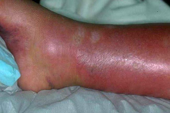 Рожа на ноге - весьма опасное заболевание инфекционного характера, его вызывает бета-гемолитический стрептококк
