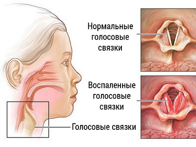 Причиной сухого кашля у ребенка может быть ларингит. При этом воспаляется гортань и сужается голосовая щель