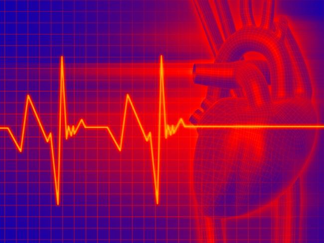 Тахикардия часто возникает по причине заболеваний сердечно-сосудистой системы