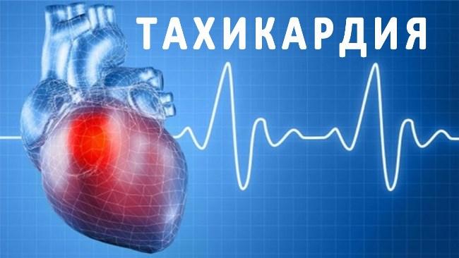 Тахикардия - нарушение частоты сердечных сокращений, которое характеризуется учащением сердечного ритма