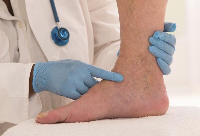 Образование тромбов в ноге - опасное явления, так как кровяной сгусток может закупорить жизненно важные сосуды